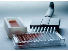 BIM试剂盒,人15脂加氧酶(15-LO;